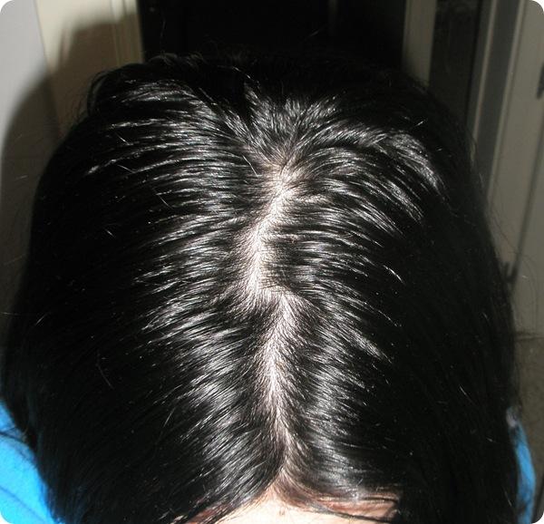 La máscara para la cabeza de la caída de los cabello con la cebolla